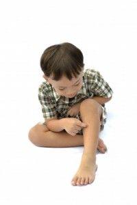 niño se rasca para aliviar la picadura de mosquito